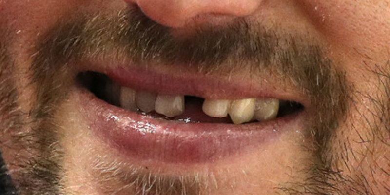 ovechkin-fixed-tooth-close-up.jpg?fit=96